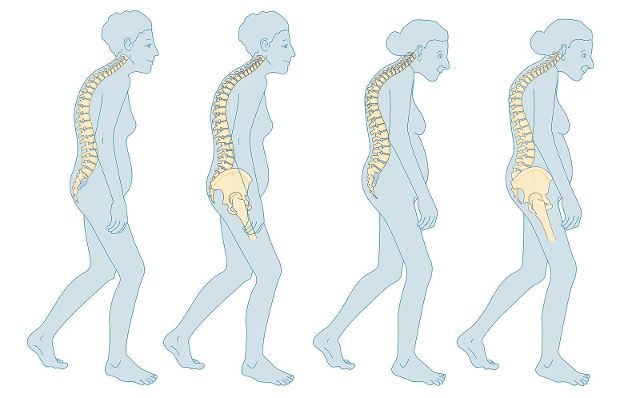 Menopause Osteoporose